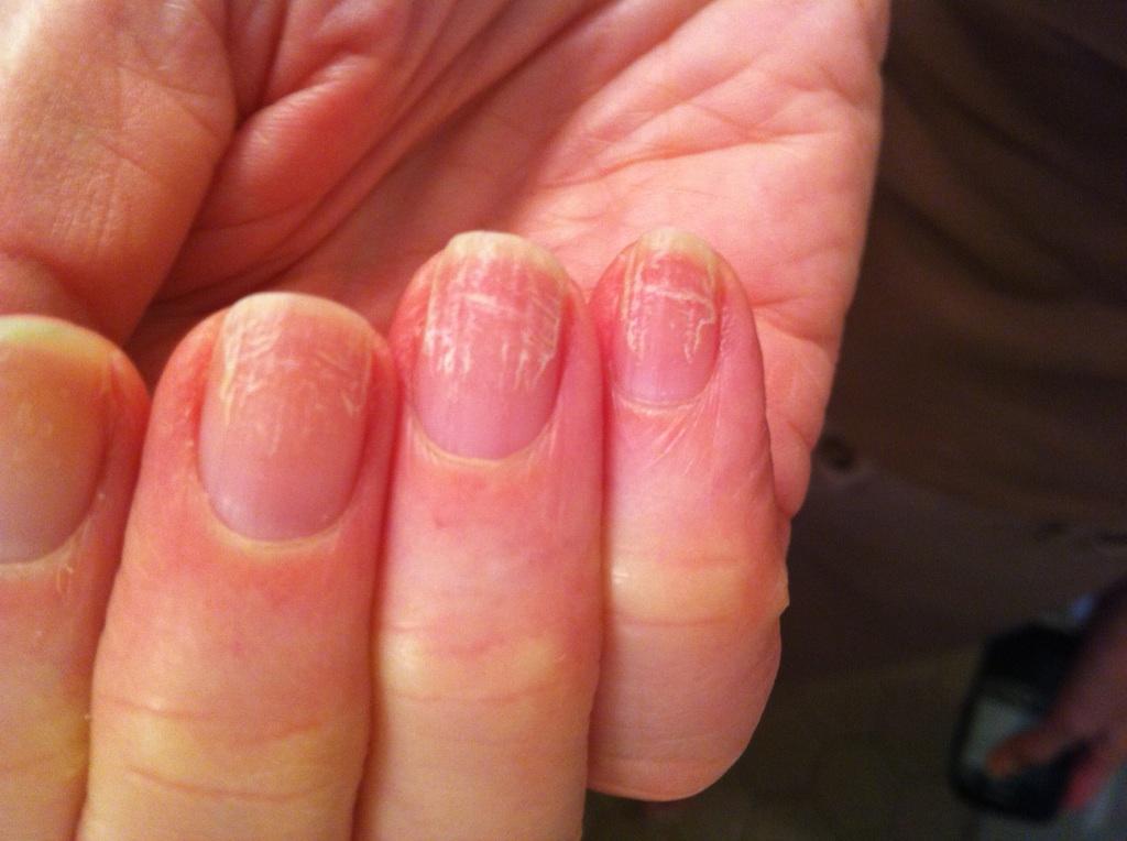 понимать, какой первоначальные проявления грибка на ногтях рук скачать добавить