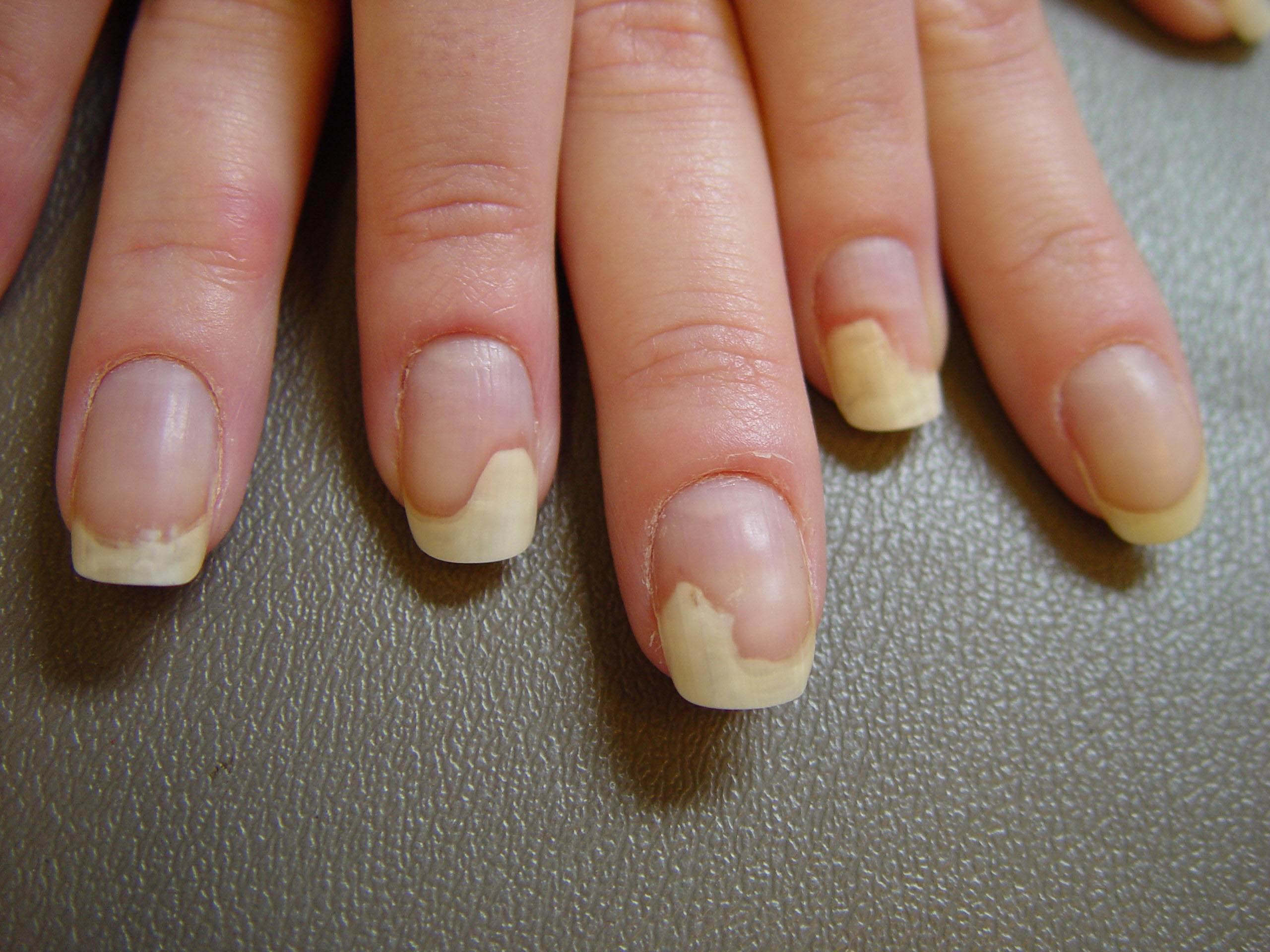 Ногти отходят от кожи на руках причины