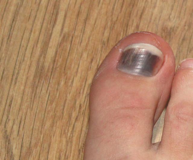 Под ногтем синее пятно что это такое