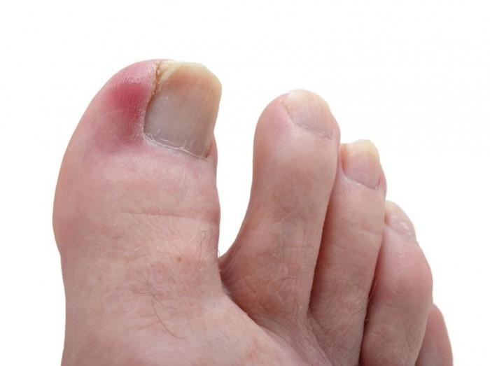 Опух палец на ноге возле ногтя лечение в домашних условиях