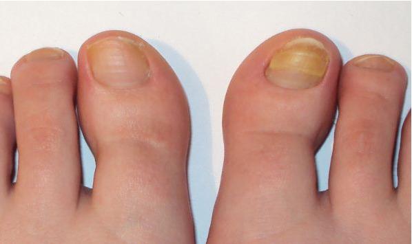Грибок на пальце чем лечить в домашних условиях 94