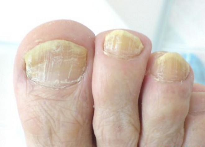 Грибок ногтей ног народная медицина как лечить