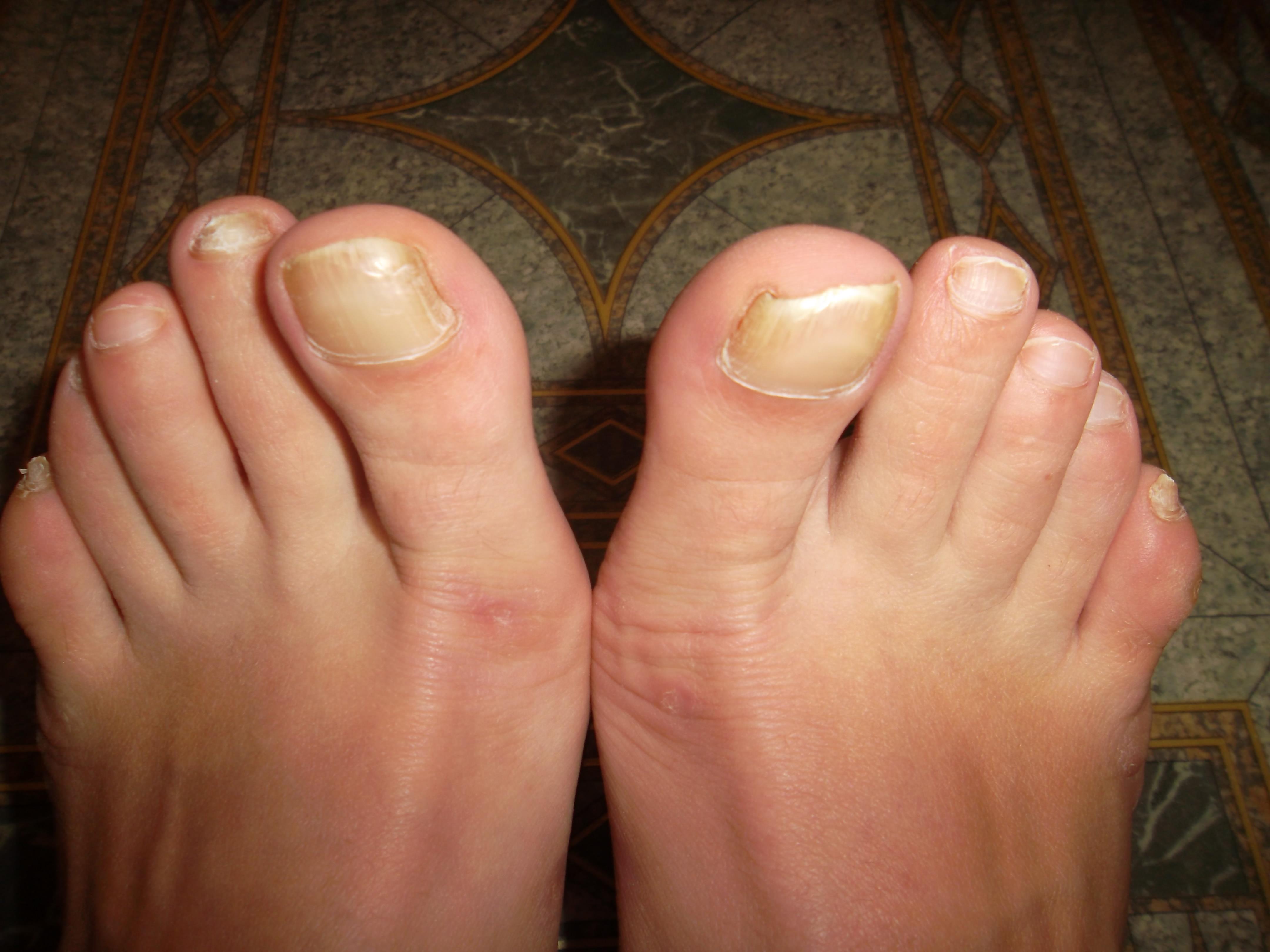 Как вылечить грибок на подошве ног в домашних условиях быстро