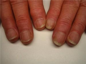 Ногти на руках ребристые