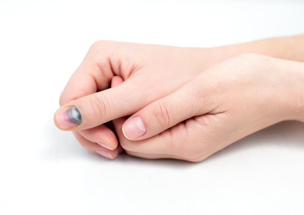 Народные средства от грибка под ногтями на руках