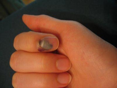 Как убрать гной под ногтем на руке