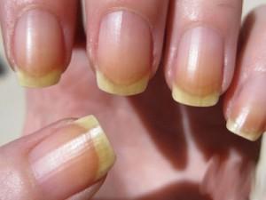 Ногти после шеллака становятся желтые
