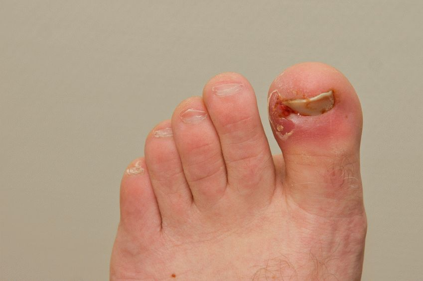 Нарывает палец на ноге возле ногтя