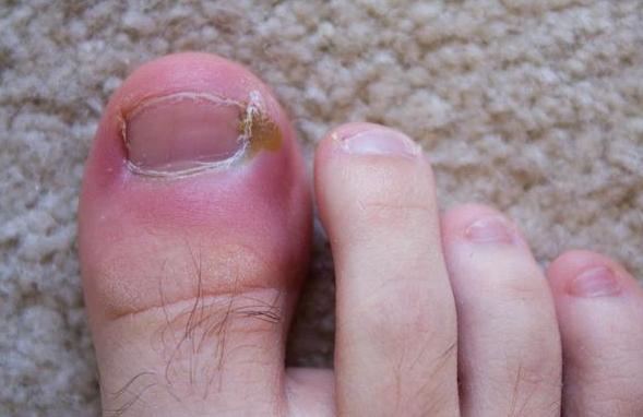 Нарывает палец на ноге возле ногтя лечение в домашних